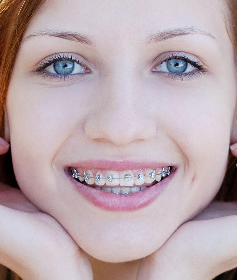 aparatos adultos con cirugía Ortognática en clinica dental coinsol
