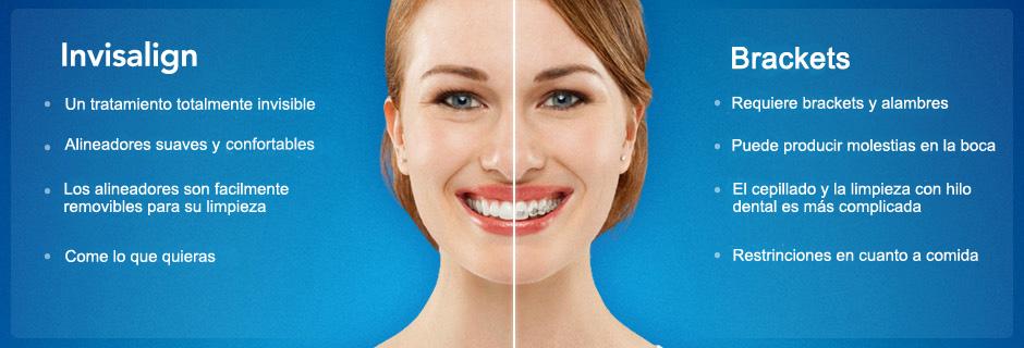 ventajas ortodoncia invisible invisalign precio