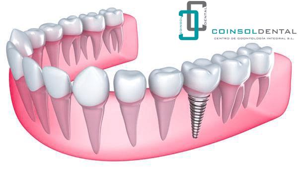 edad colocar implantes dentales