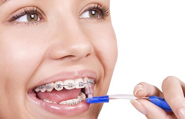 ortodoncia infantil sevilla