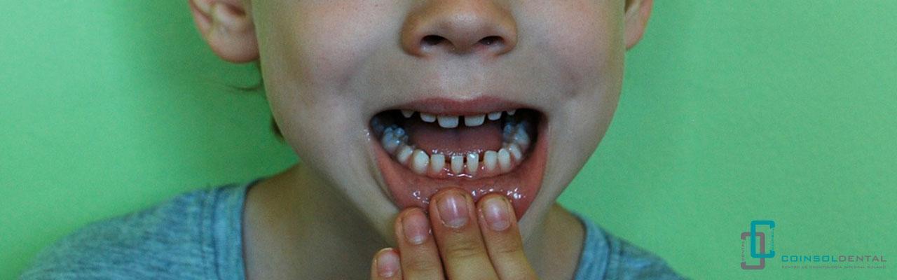 dientes con caries