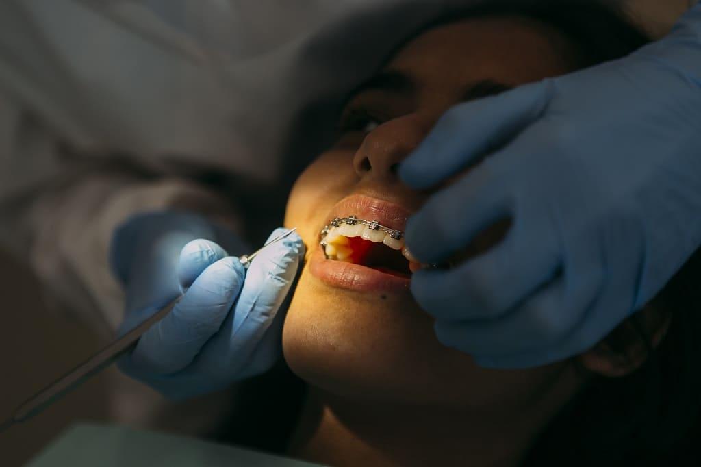 Ortodoncia y enfermedad periodontal