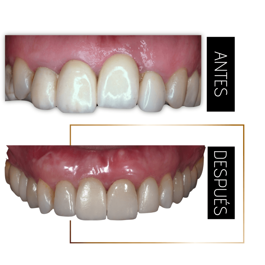 Tratamiento que combina la ortodoncia para la alineación de los dientes, la cirugía mucogingival para la nivelación los márgenes de las encías, y la colocación de implantes dentales
