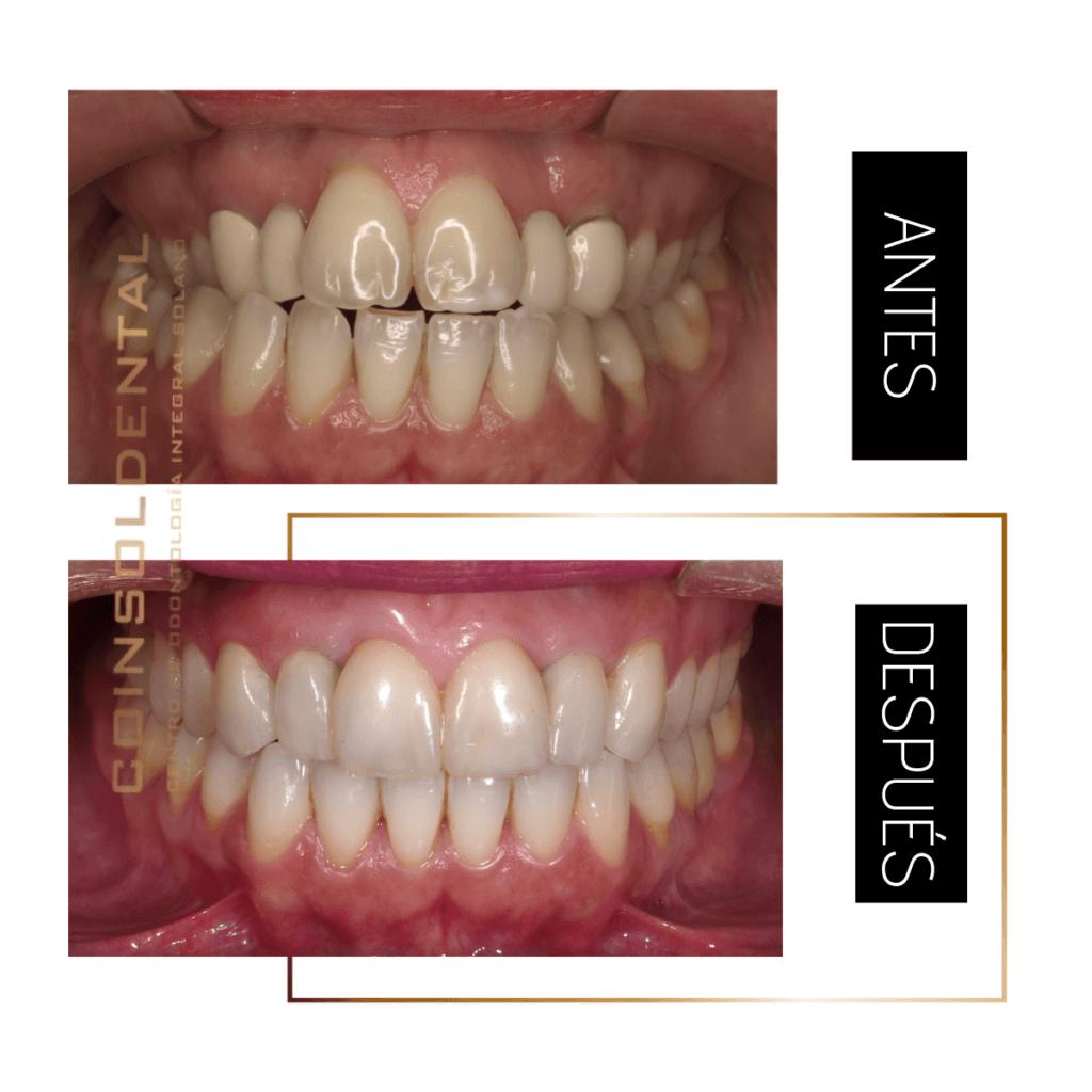 Caso de ortodoncia, injerto de encías y colocación de implantes dentales.