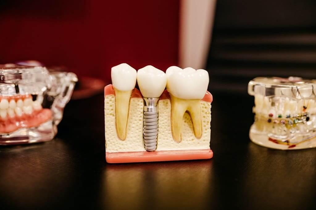 COINSOL - Limpieza y mantenimiento de implantes dentales